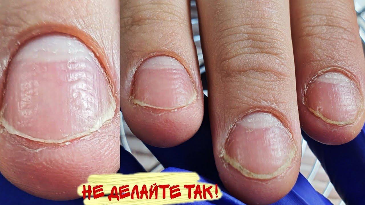 Жесть и это навсегда😭кардинальное преображение ногтей/обкусаные ногти