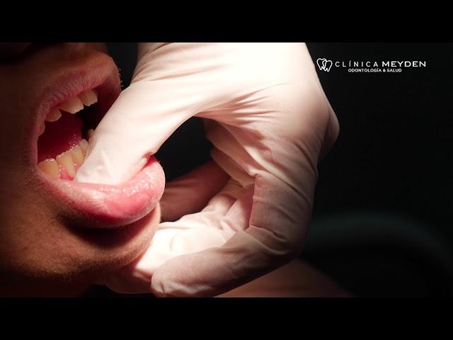 Clínica Meyden -  Enfermedad de las encías