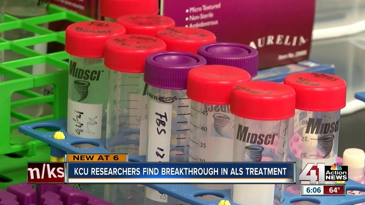 KCU researchers find breakthrough in ALS treatment