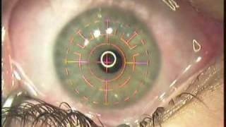 Epilasik Eye Surgery