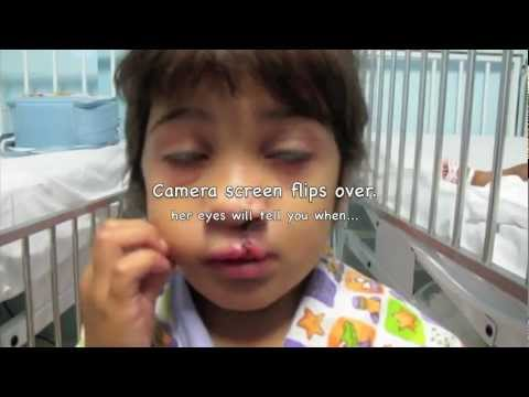 Changing faces with a smile - Operation Smile