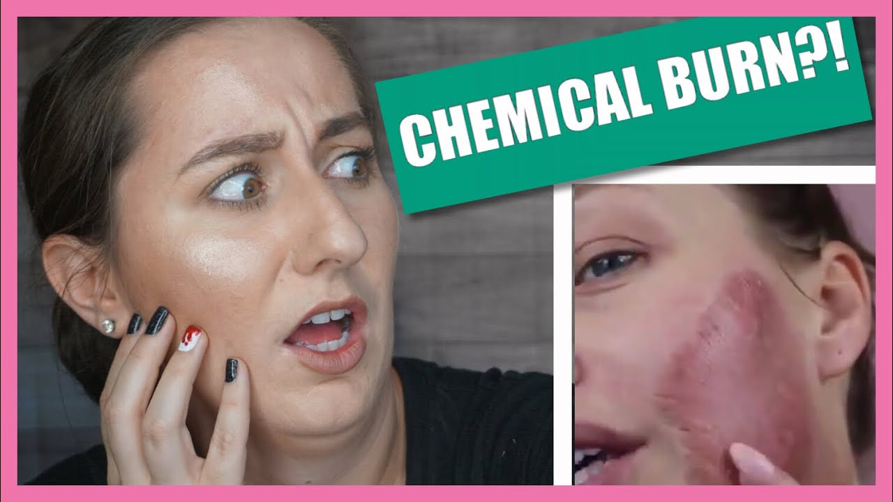 Reacts DIY Chemical Peel Gone Wrong