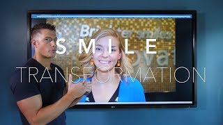 Smile Transformation - Nicole - 20 Veneers