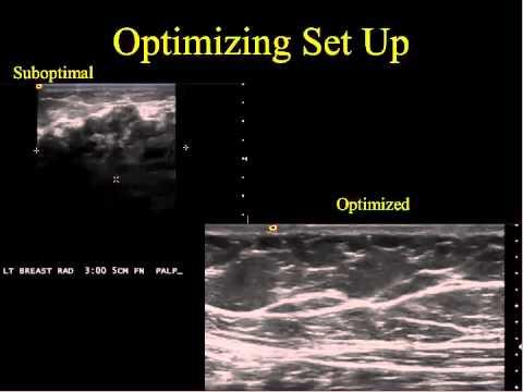 Case Studies in Optimizing Breast Ultrasound
