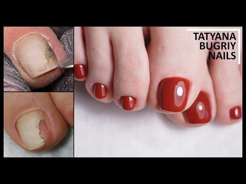 Как укрепить ногти на ногах