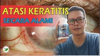 Bacterial Keratitis Part 2.