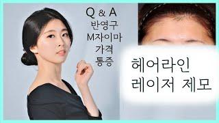[헤어라인교정] 헤어 라인 레이저 제모 후기 | 1년경…