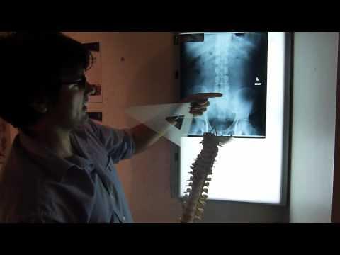 hqdefault - Plain Radiographs Back Pain