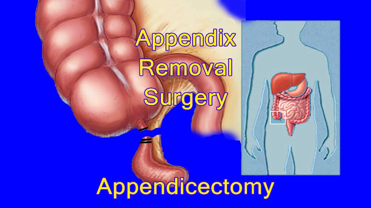 Appendix Operation Laparoscopic Appendicectomy By Dr Vidur Jyoti