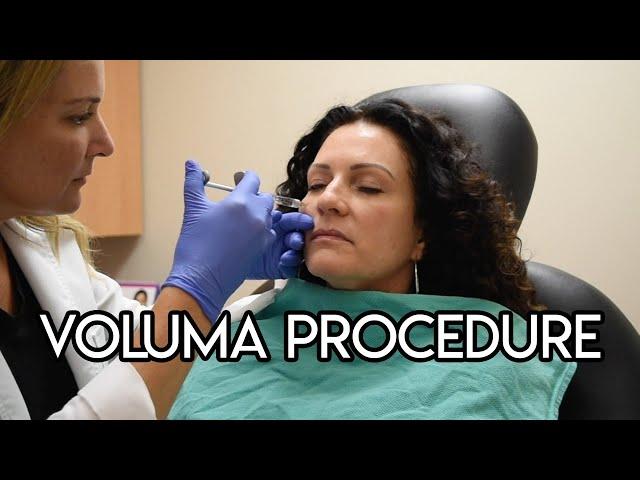 Voluma Procedure