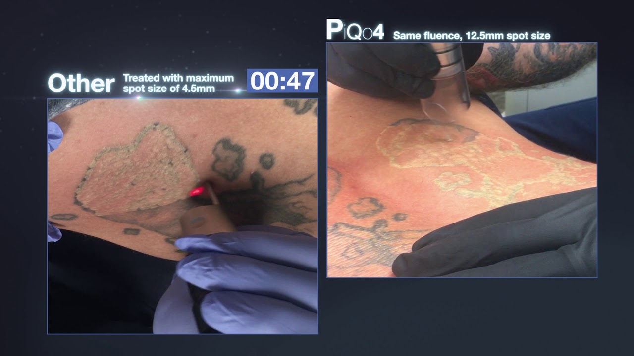 PiQo4 Tattoo Pigment Removal | Perfection Plastic Surgery