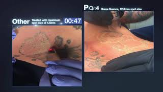 Nd:YAG Laser Tattoo & Pigmentation Removal Machine - PiQo4 | Lumenis