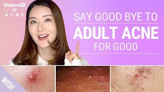 How To Completely Get Rid Of Adult Acne! | WishtrendTV vs ACNE