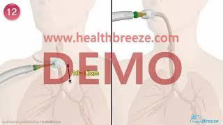 [시연용] c0223aako_기관절개관 흡인방법 안내 …