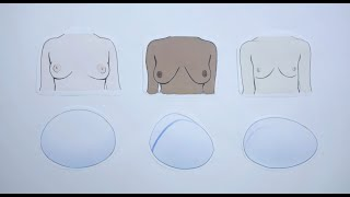 POLYTECH – Какие типы имплантатов груди мы предлагаем