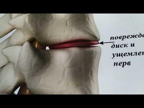 Межпозвоночный остеохондроз лечение и причины возникновения, 1 часть