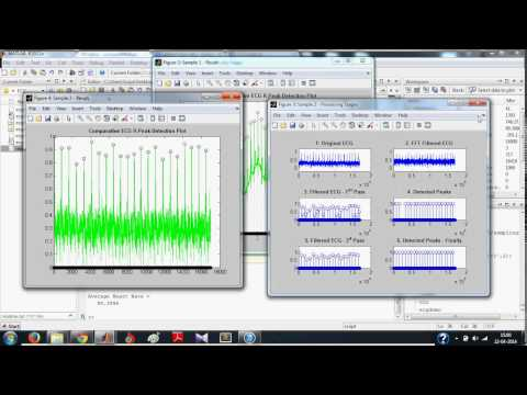 ECG Signal Processing in MATLAB - Detecting R-Peaks: Full