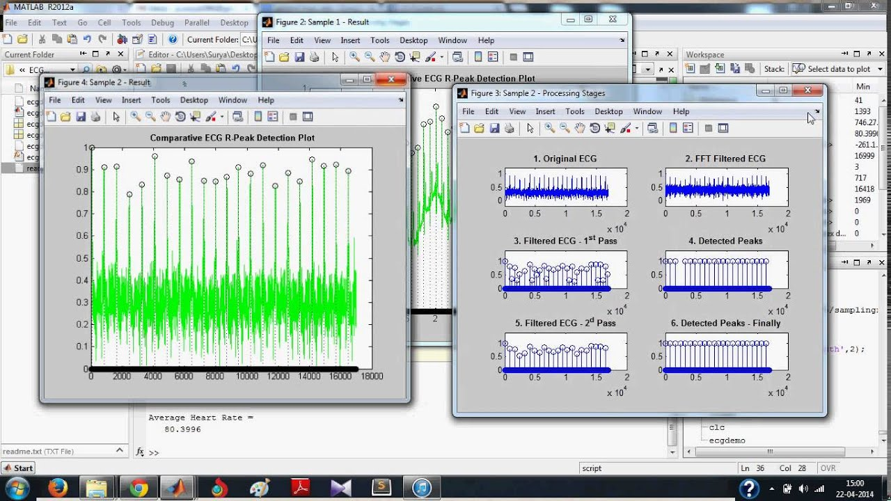ECG Signal Processing in MATLAB - Detecting R-Peaks: Full