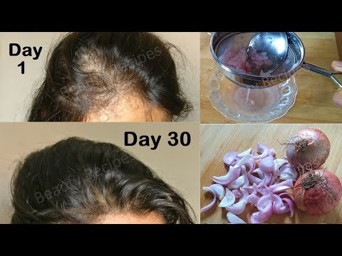 Regrow Lost Hair from Roots with Onion juice & Coconut Hair Oil - Double hair growth & get Long hair