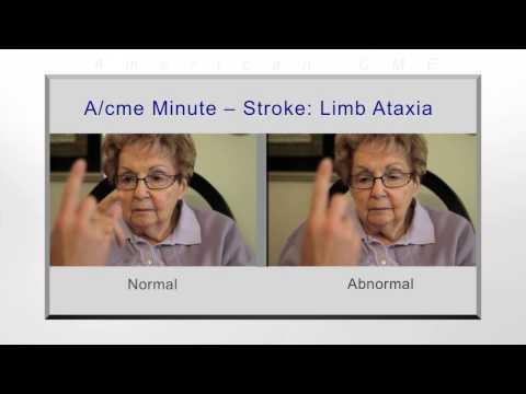 A/cme minute: Stroke- limb ataxia