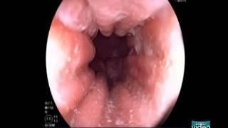 Endoscopic Appearance of Eosinophilic Esophagitis