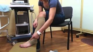 видео Компрессионное белье при варикозе