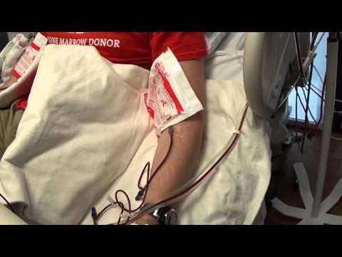 Bone Marrow Donation via Stem Cells