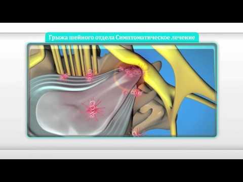 Грыжа шейного отдела позвоночника - симптомы и способы лечения