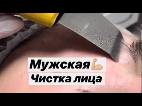 Комбинированная чистка лица для мужчин / мужская чистка лица