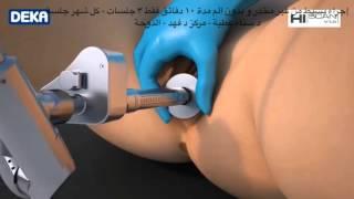 Monalisa Vaginal Laserليزر موناليزا لتصحيح الترهلات المهبلية. Dr Fahd center -Doha-28-