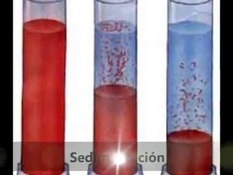 Suspensiones quimica
