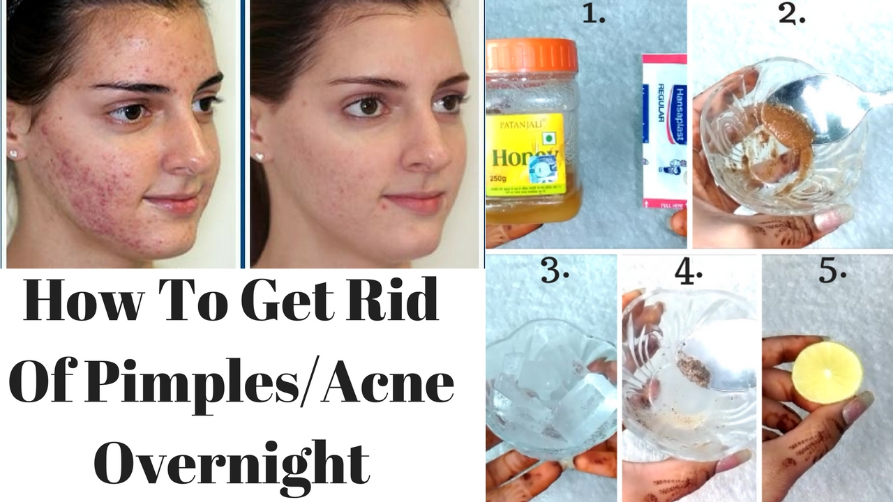 Top 5 Ways To Get Rid Of Pimples Acne Overnight Natural Ways To