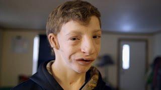 Deux sur 1 million: le syndrome de Goldenhar