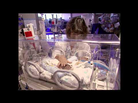 Challenges of Premature Birth