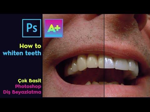 How To Whiten Teeth / Diş Beyazlatma Çok Kolay / PHOTOSHOP TUTORIAL thumbnail