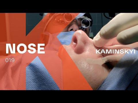 Отек слизистой носа - как снять отек слизистой носа?