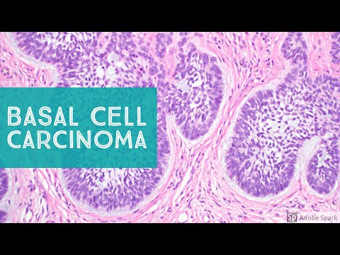 Basal Cell Carcinoma (BCC) - Dermpath Basics Explained by a Dermatopathologist