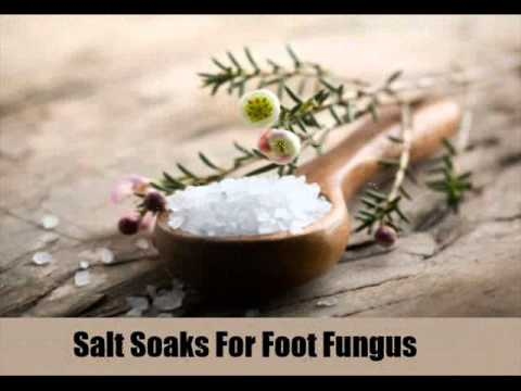 12 Effective Home Remedies For Foot Fungus