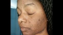 hqdefault - Acid Soap For Acne