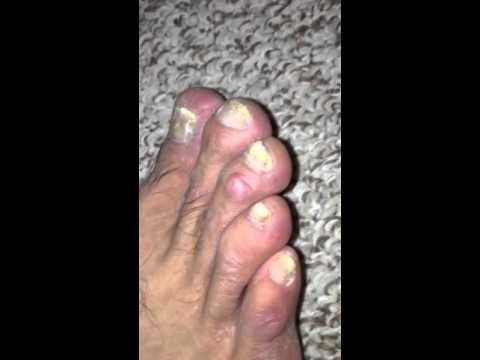 Foot on Terbinafine (Lamisil) 12/30/15