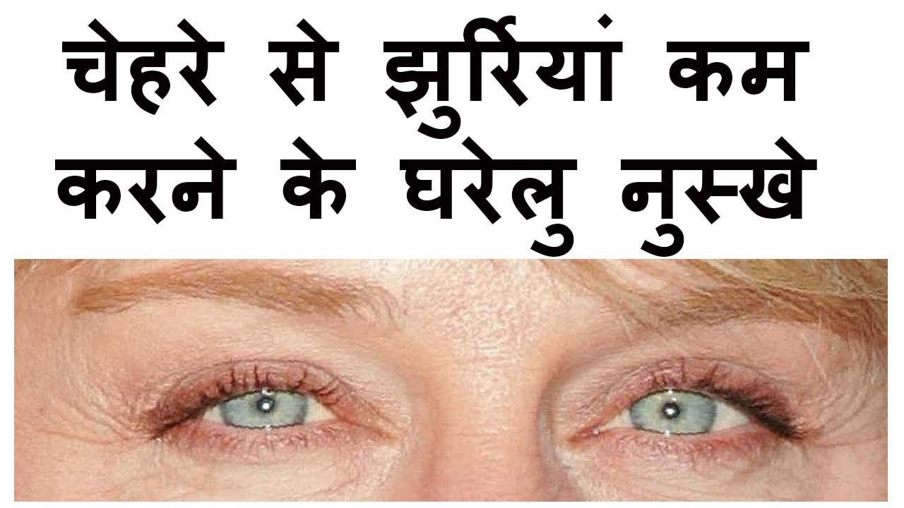 Home Remedies For Crows Feet in Hindi