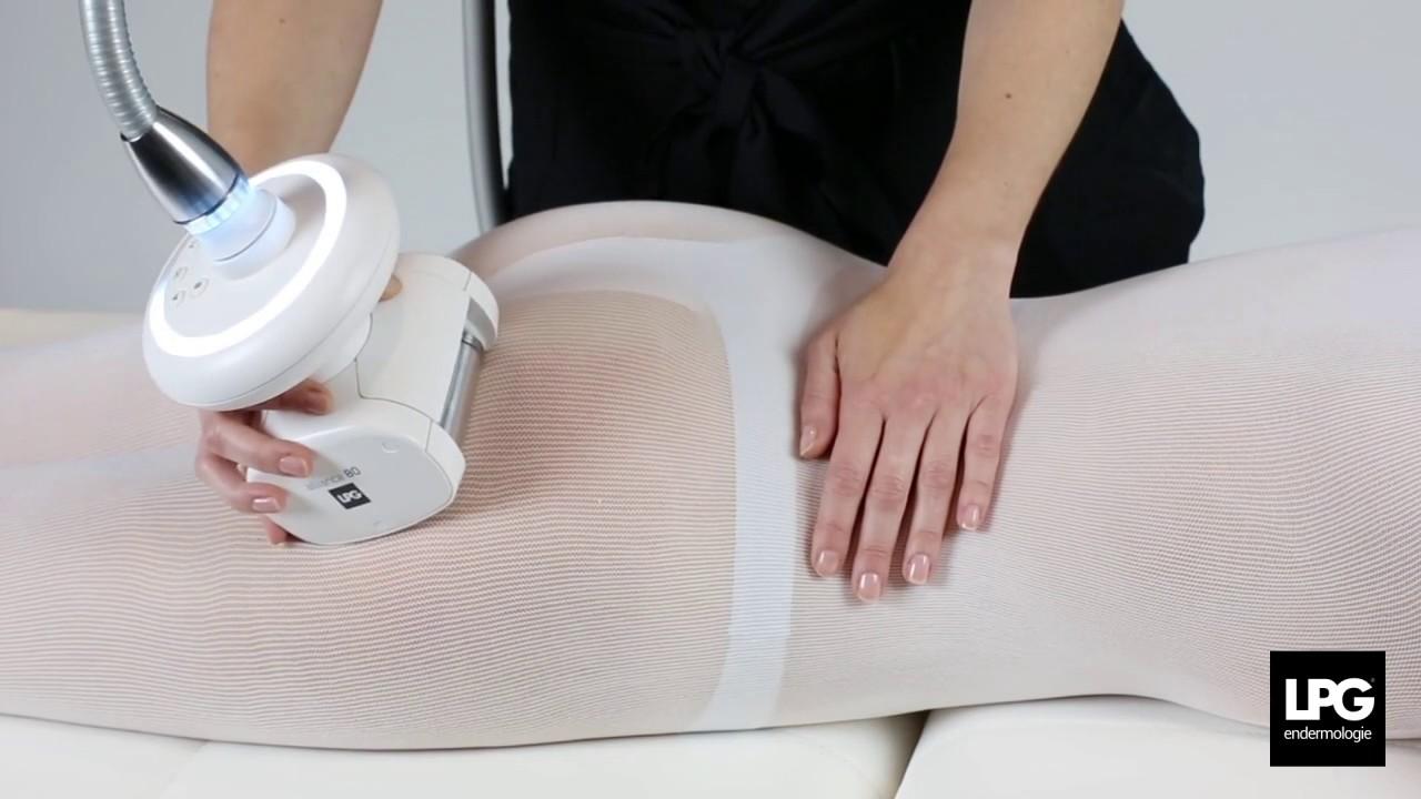 lpg anti cellulite
