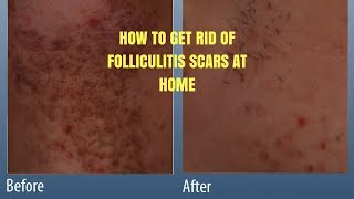 HOW TO GET RID OF FOLLICULITIS SCARS AT HOME.