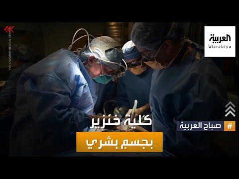 صباح العربية | كلية خنزير لإنقاذ الإنسان.. شيخ أزهري لا يمانع؟