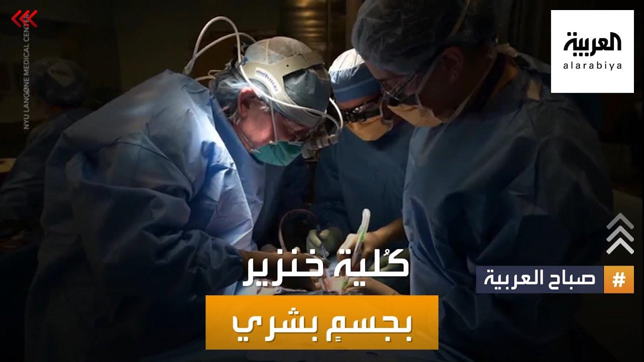 صباح العربية | كلية خنزير لإنقاذ الإنسان.. شيخ أزهري لا يمانع؟  - 15:53-2021 / 10 / 21