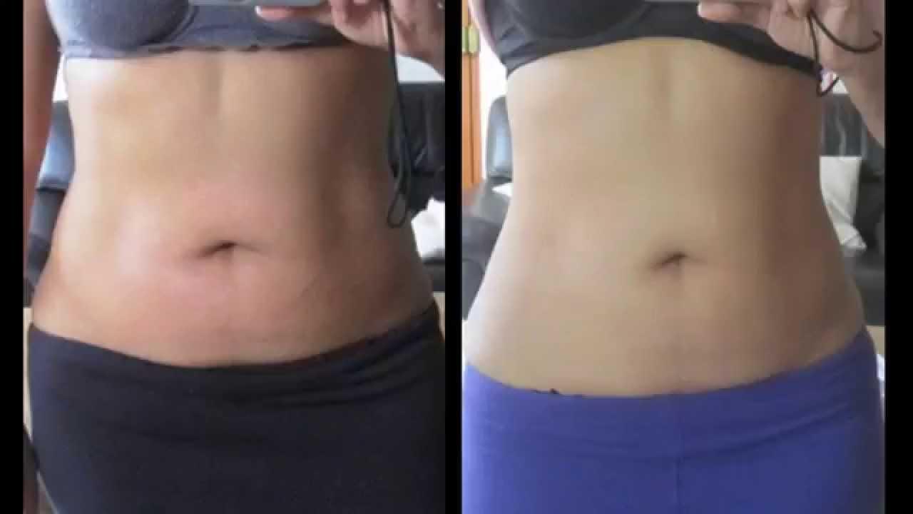 Bajar de peso con masajes reductivos