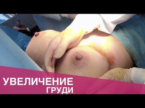 Впечатляющее увеличение груди | Augmentation Mammoplasty | Ирина Швец