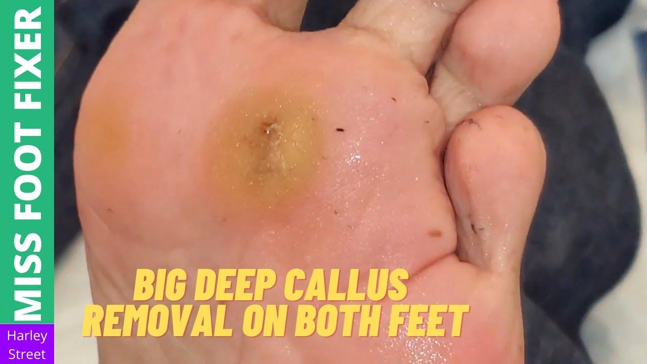 BIG Deep callus Removal [ Both feet ]   Miss Foot Fixer