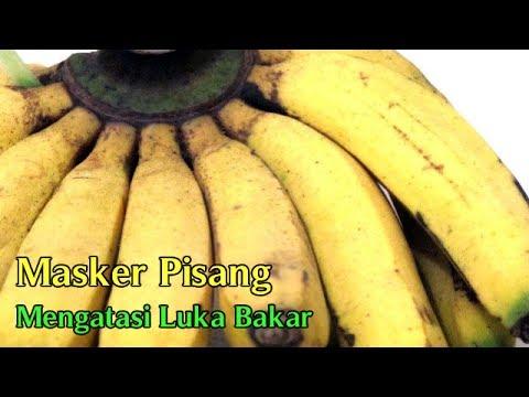 luka-bakar:-obat-luka-bakar-herbal-manfaat-pisang