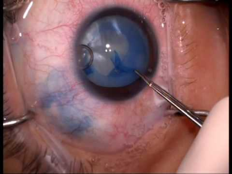 Diabetic Cataract Surgery